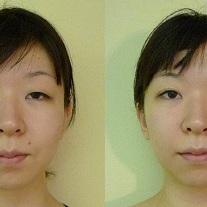 大阪・美容はり/小顔矯正も一緒に受けれる人気メニュー・irodoriベーシックの流れをご紹介