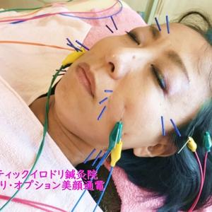 美容はり 美顔通電が気持ちよくって、リフトアップにも人気です!